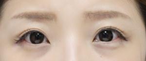 とっても自然な眉のアートメイク 横浜アンジュールクリニック