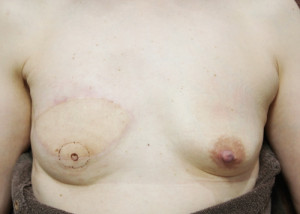 感動!乳輪と乳頭を再建して、乳癌で失った乳房を取り戻しました